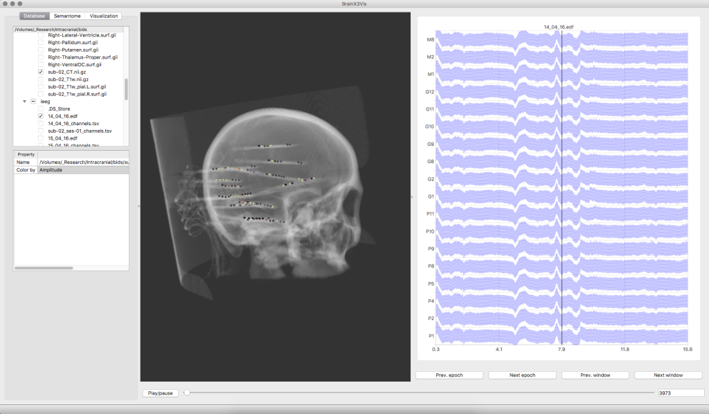 Intracranial recordings